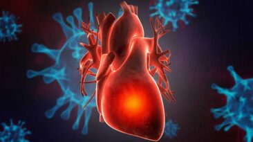 COVID-19 infection may have lasting or delayed effects on heart